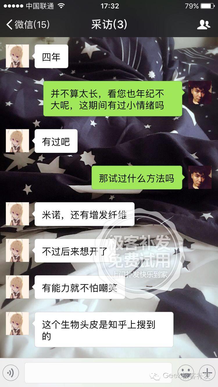 刘先生分享脱发补发经历